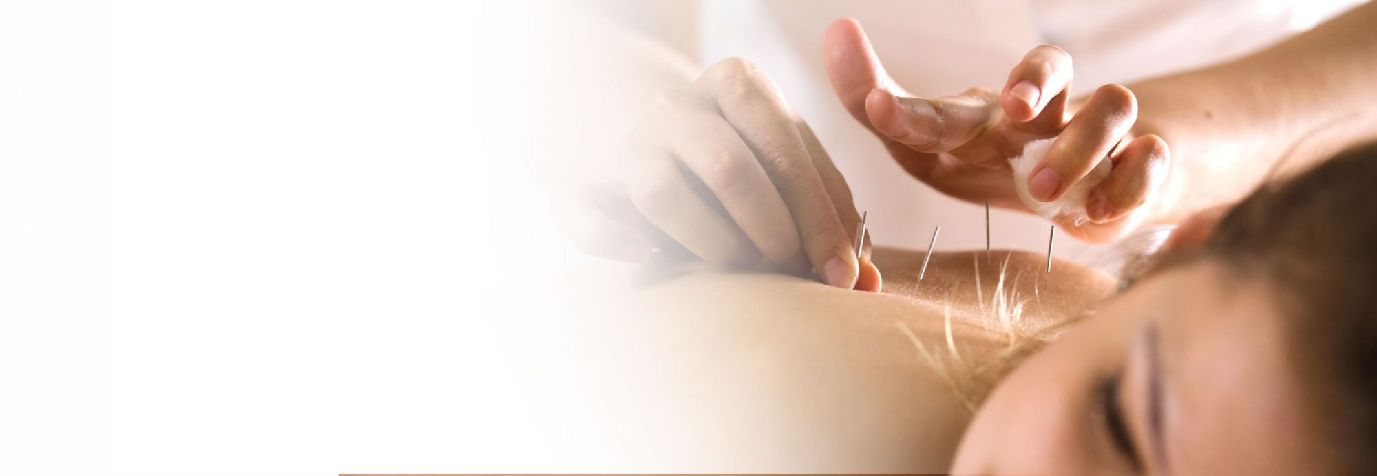 acupuncture-at-parkhill-bolton