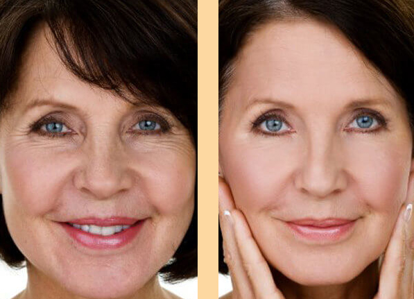 Turning back the clock on the natural ageing process.
